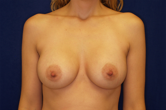 Breast Augmentation after 336009