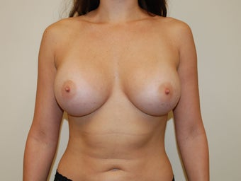 Breast Augmentation after 397787