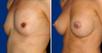 Breast Implants after 494498