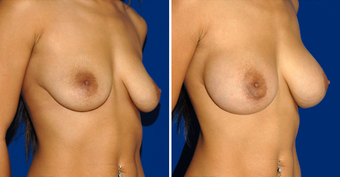 Breast Implants after 494499