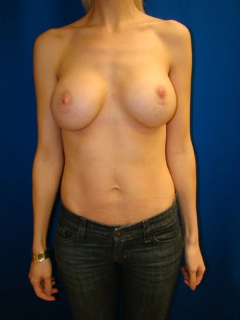 Breast Augmentation Revision after 76461
