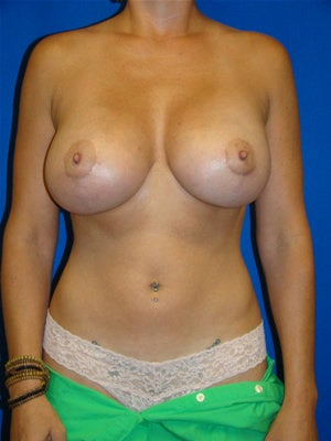 Revisionary Breast Augmentation after 89477