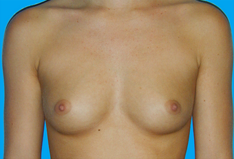 Breast Augmentation before 335916
