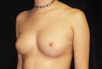 Breast Augmentation before 335970