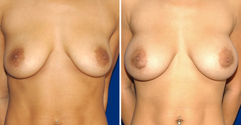 Breast Implants before 494499