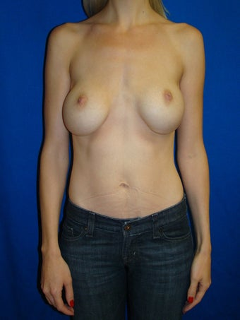 Breast Augmentation Revision before 76461
