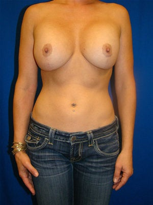 Breast Augmentation Revision before 85730