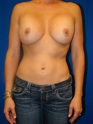 Revisionary Breast Augmentation before 89477