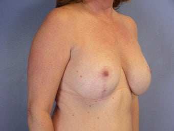 BREAST LIFT/ BREAST AUGMENTATION after 280028
