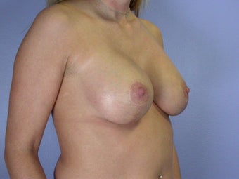 Breast Lift / Breast Augmentation  after 290964