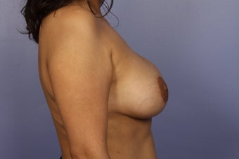 Breast Lift / Breast Augmentation  after 291028