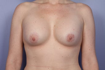 Breast Lift / Breast Augmentation   after 291063