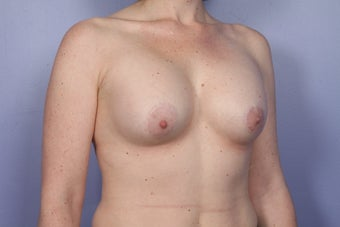 Breast Lift / Breast Augmentation  after 291065