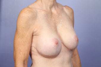 Breast Lift / Breast Augmentation   after 291089
