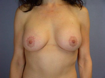 Breast Lift / Breast Augmentation after 291159