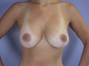 Breast Lift / Breast Augmentation   after 291176