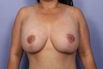 Breast Lift / Breast Implant