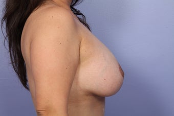 Breast Lift / Breast Implants  after 301660