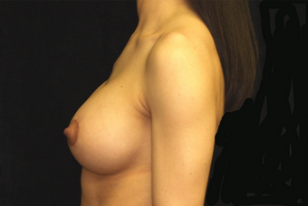 Breast Augmentation with mastoplexy after 630035