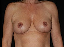 Breast Lift after 633846