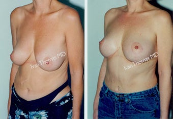 Mastopexy-Breast Lift before 243725
