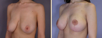 Mastopexy, Breast Lift before 270056