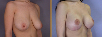 Mastopexy, Breast Lift before 270059