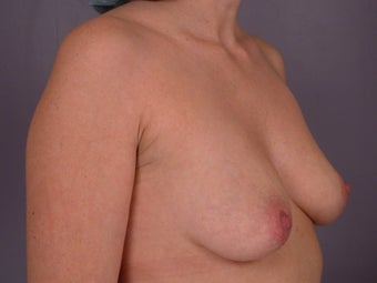Breast Lift / Breast Augmentation  before 290964