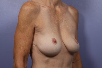 Breast Lift / Breast Augmentation   before 291089