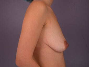 Breast Lift / Breast Augmentation before 291111