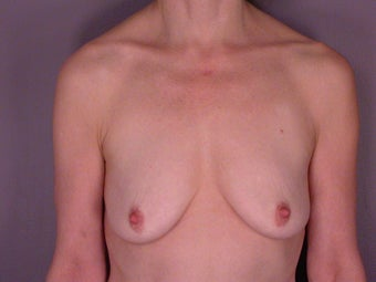 Breast Lift / Breast Augmentation before 291159