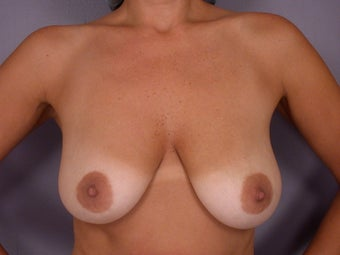 Breast Lift / Breast Augmentation   before 291176