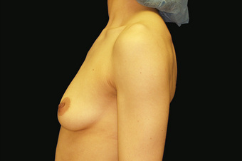Breast Augmentation with mastoplexy before 630035