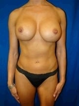 Breast Reconstruction Surgery