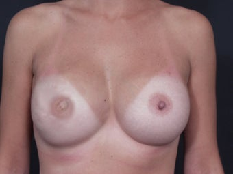29 Year Old Female for Breast Reconstuction after 643156