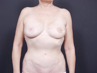 62 Year Old Female for Breast Reconstruction after 643258
