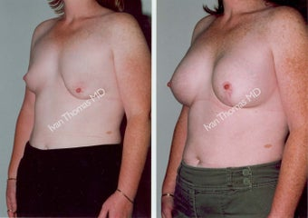 Breast Reconstruction before 243026