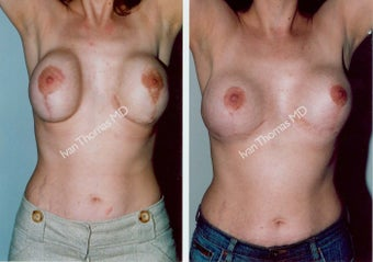 Breast Reconstruction before 243032