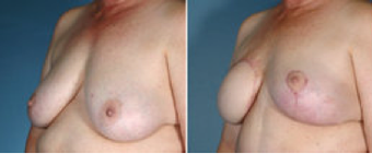 Breast reconstruction before 270817