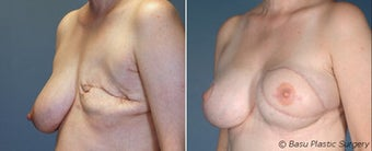 Breast reconstruction before 270818
