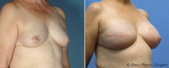 Breast reconstruction before 270821