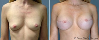 Breast reconstruction before 270824