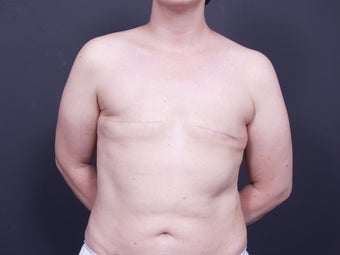 37 Year Old Female for Breast Reconstruction before 643165