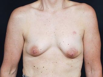 48 Year Old for Breast Reconstruction before 643205