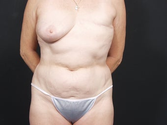 62 Year Old Female for Breast Reconstruction before 643258