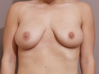 Breast Reduction - performed with liposuction only after 185407