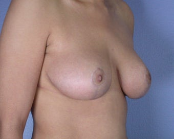 Breast Reduction after 285300