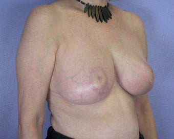 Breast Reduction after 285308