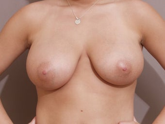 Breast Reduction - performed with liposuction only before 185407