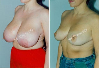 Breast Reduction before 243743